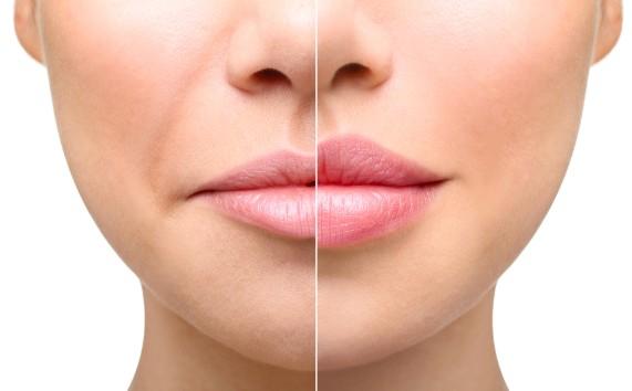 результат контурной пластики губ